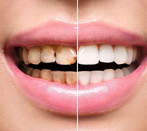 Atlantis Dental Implant Restoration