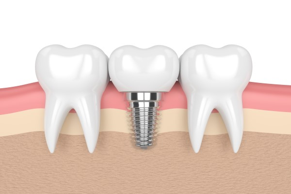 Success Rate Of Dental Implants
