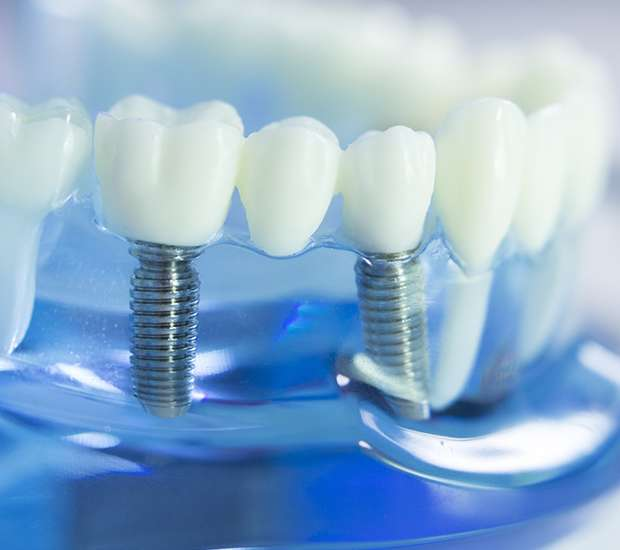 Atlantis Dental Implants