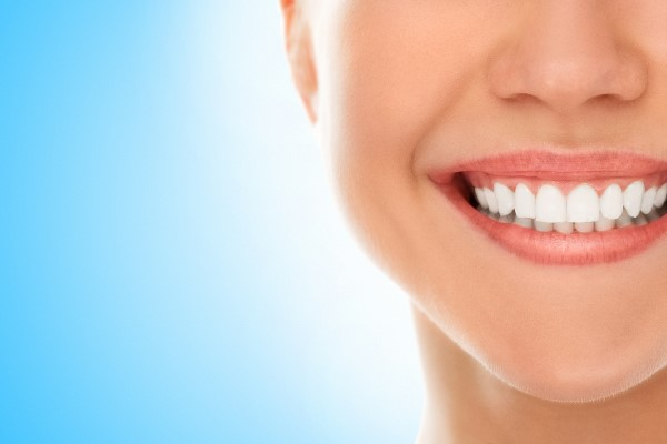 What Are Dental Veneers Used For?