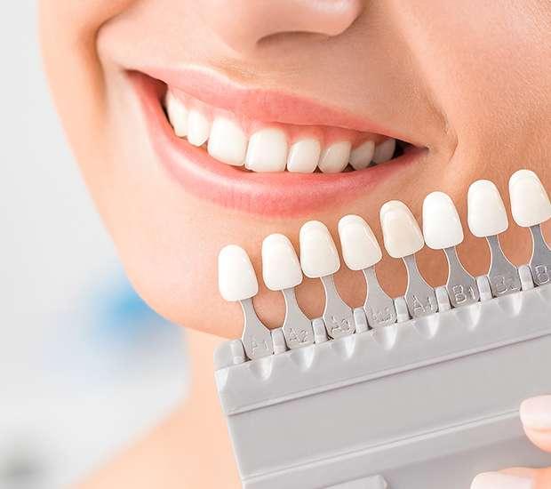 Atlantis Dental Veneers and Dental Laminates