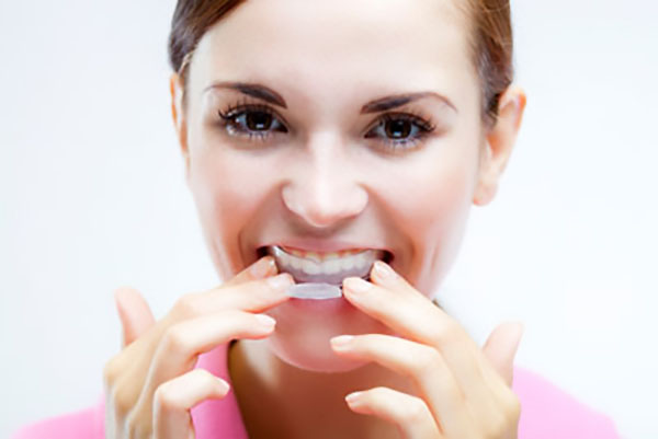 Does Invisalign Have To Be Worn At All Times?