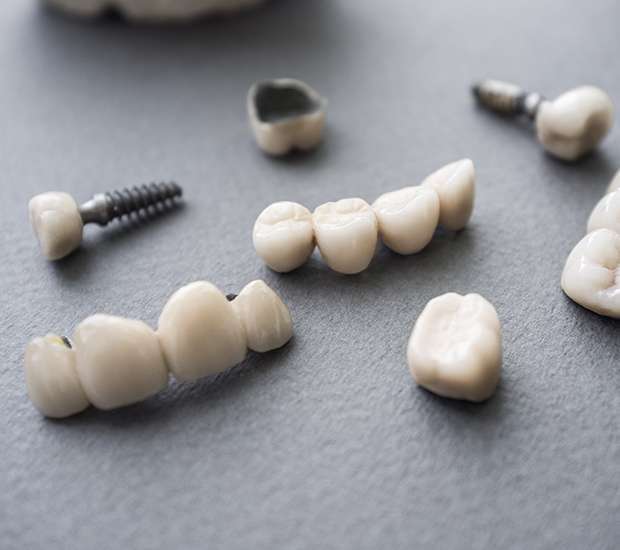 Atlantis The Difference Between Dental Implants and Mini Dental Implants